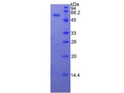 Human Intercellular Adhesion Molecule 5 (ICAM5) Protein