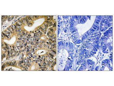 4EBP1 (Phospho-Thr70) Antibody