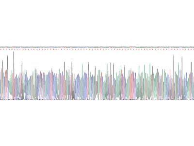 Human Calgranulin B (S100A9) Protein