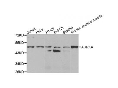 Aurora Kinase A (AURKA) Antibody