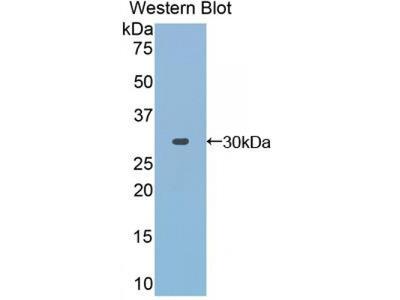 Toll Interacting Protein (TOLLIP) Antibody