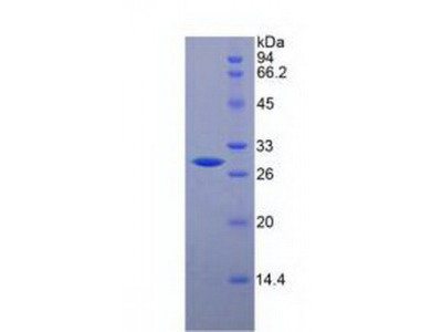 Mouse Glycoprotein 39, Cartilage (CHI3L1) Protein