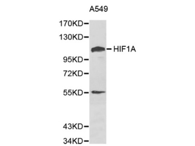 Hypoxia Inducible Factor 1 Alpha (HIF1a) Antibody