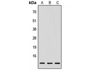 Lymphocyte Antigen 6 Complex Locus E (LY6E) Antibody