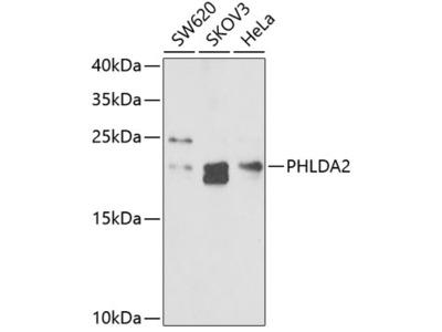 Anti-TSSC3 antibody