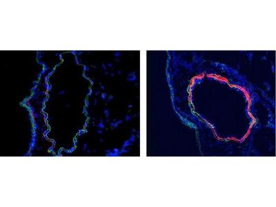 Anti-C4d antibody [16D2]