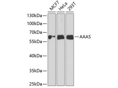 Anti-Aladin antibody