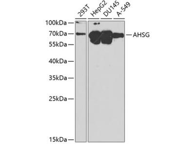 Anti-Fetuin A antibody
