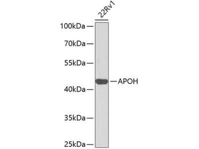 Anti-Apolipoprotein H antibody