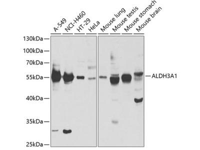 Anti-ALDH3A1 antibody