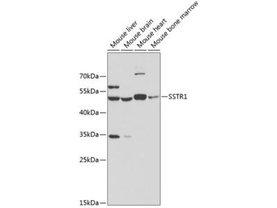 Anti-Somatostatin receptor 1 antibody