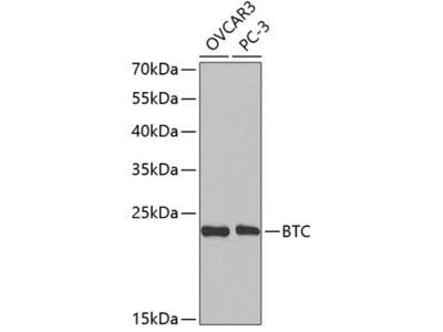 Anti-Betacellulin antibody