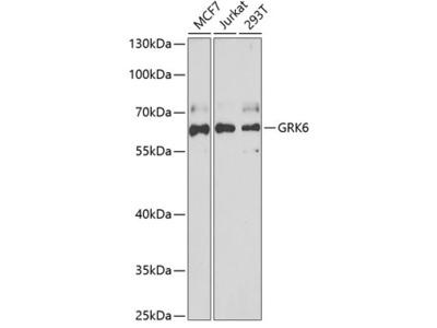 Anti-GRK6 antibody