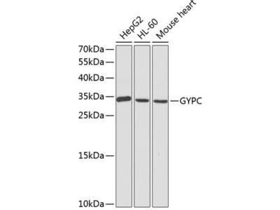 Anti-Glycophorin C antibody