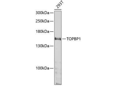 Anti-TOPBP1 antibody