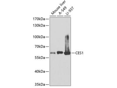 Anti-CES1 antibody