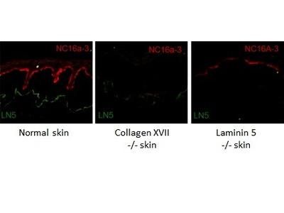 Anti-COL17A1 antibody [NC16a-3]