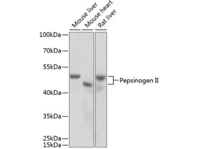 Anti-Pepsinogen II antibody