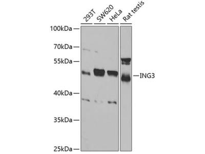 Anti-ING3 antibody