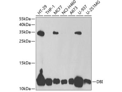 Anti-DBI antibody