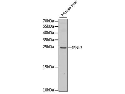 Anti-IL28B antibody