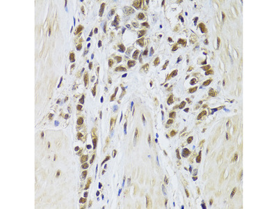 Anti-Splicing Factor 1 antibody