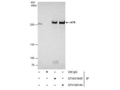 Anti-ATR (phospho Thr1989) antibody [GT222]