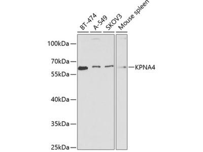 Anti-KPNA4 antibody