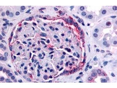 Anti-PIB5PA antibody