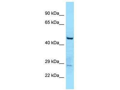 Rabbit Polyclonal Anti-TTLL3 Antibody