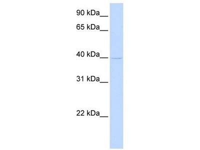 Rabbit Polyclonal Anti-TMOD2 Antibody