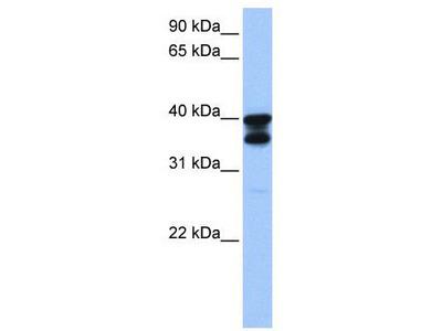 Rabbit Polyclonal Anti-SLC25A31 Antibody
