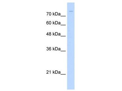 Rabbit Polyclonal Anti-ZNF709 Antibody