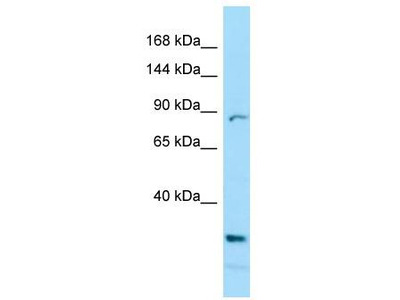 Rabbit Polyclonal Anti-PRICKLE2 Antibody