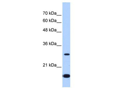 Rabbit Polyclonal Anti-USE1 Antibody