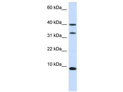 Rabbit Polyclonal Anti-DBI Antibody