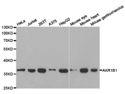 AKR1B1 Rabbit Polyclonal Antibody