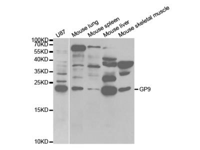 Rabbit anti-GP9 Polyclonal Antibody