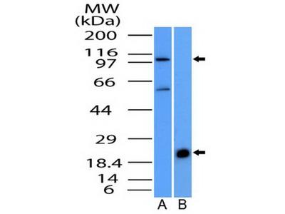 Rabbit Polyclonal NALP6 Antibody