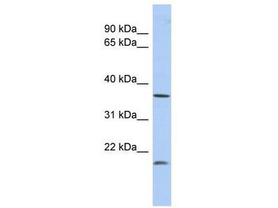 Rabbit Polyclonal Anti-MTHFD2L Antibody