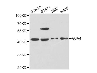 Rabbit anti-GJA4 Polyclonal Antibody