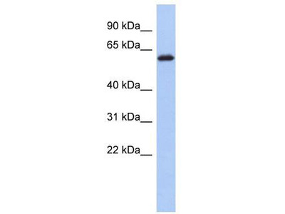 Rabbit Polyclonal Anti-KLHL7 Antibody