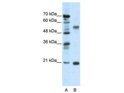 Rabbit Polyclonal Anti-CHRNB3 Antibody