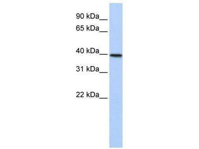 Rabbit Polyclonal Anti-TIA1 Antibody