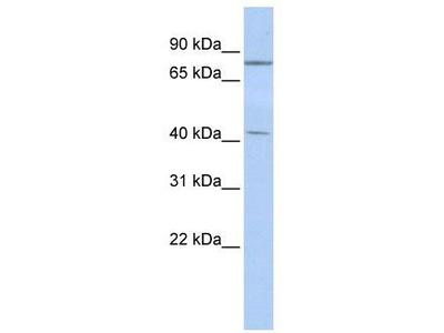 Rabbit Polyclonal Anti-KLHL3 Antibody