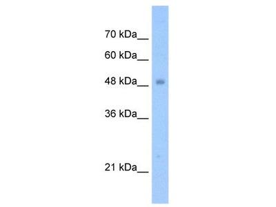 Rabbit polyclonal Anti-TIGD3 Antibody