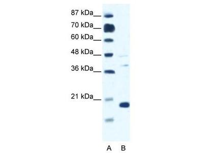 Rabbit polyclonal Anti-CACNG1 Antibody