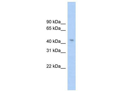 Rabbit Polyclonal Anti-RG9MTD1 Antibody