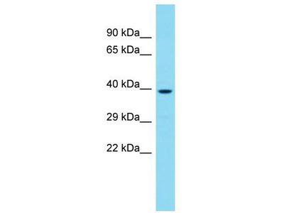 Rabbit Polyclonal Anti-CCDC97 Antibody
