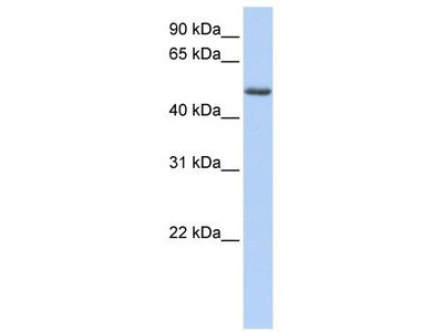 Rabbit Polyclonal Anti-PHLDA1 Antibody